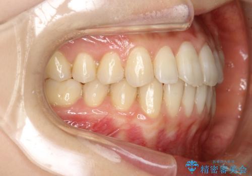前歯のガタガタをインビザラインで目立たず矯正の症例 治療後