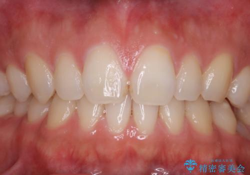 親知らずを抜いて1週間後にPMTC 歯のクリーニングの治療前