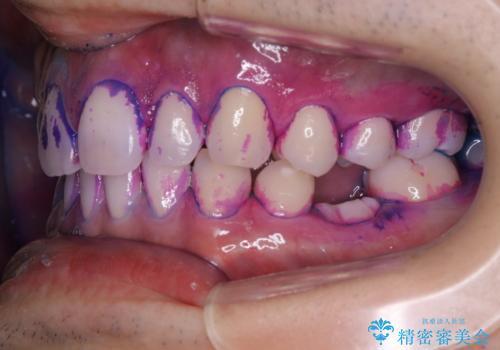 親知らずを抜いて1週間後にPMTC 歯のクリーニングの治療中