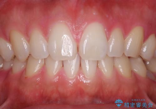 親知らずを抜いて1週間後にPMTC 歯のクリーニングの治療後