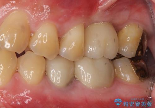 上の奥歯のインプラント、全体的な虫歯治療の症例 治療後