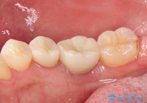 保存不可能な歯を抜歯してインプラント治療の治療後