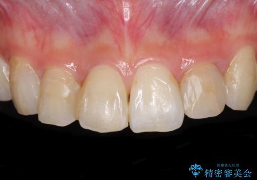 継ぎ接ぎだらけの前歯を綺麗にしたい 前歯のオールセラミックの治療前