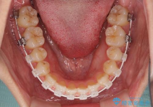 前歯のクロスバイトと変色した歯 ワイヤー矯正とセラミック治療の治療中