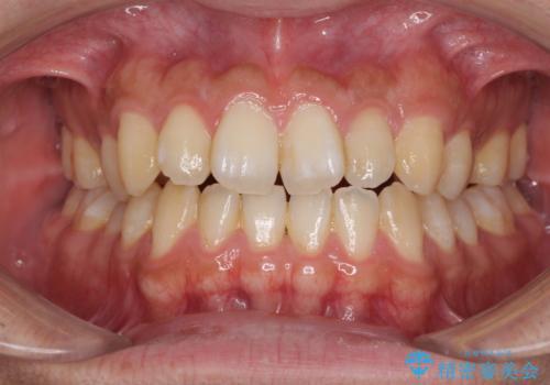 下顎前歯と上顎の部分矯正の症例 治療前