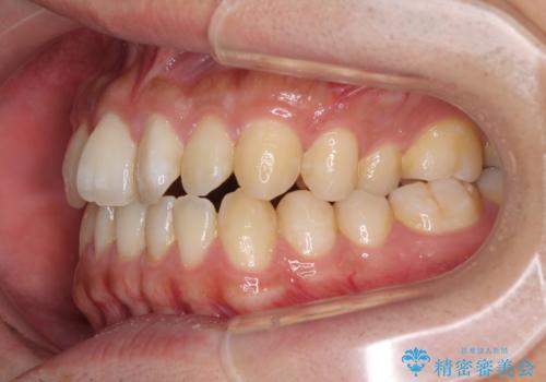 下顎前歯と上顎の部分矯正の治療前