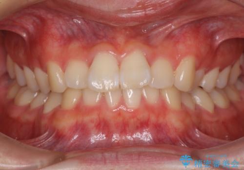 深い咬み合わせとデコボコ ワイヤー矯正で短期治療の症例 治療前