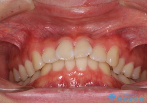 深い咬み合わせとデコボコ ワイヤー矯正で短期治療の治療前