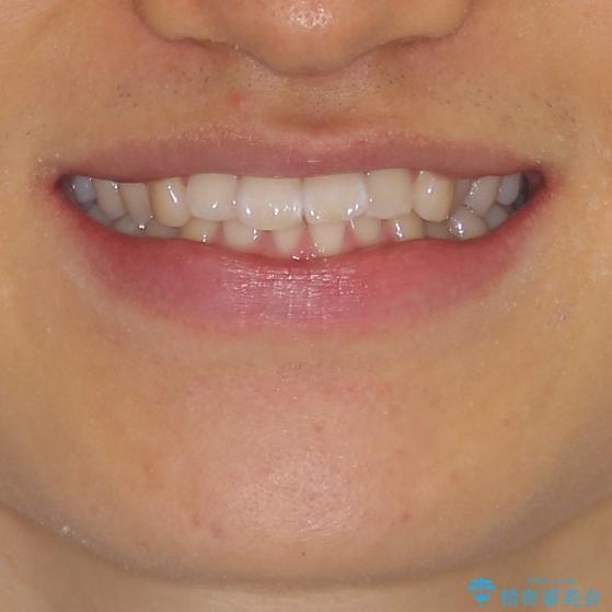 深い咬み合わせとデコボコ ワイヤー矯正で短期治療の治療前(顔貌)