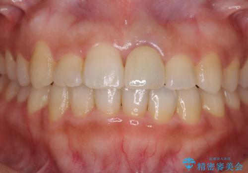 前歯のクロスバイトと変色した歯 ワイヤー矯正とセラミック治療の治療後