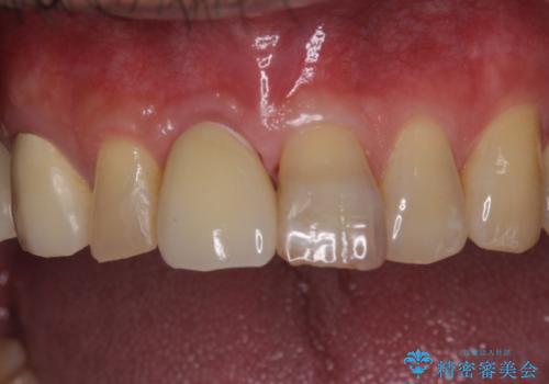 前歯インプラントの症例 治療後