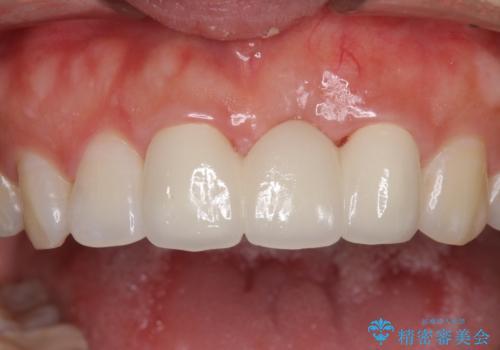 前歯のブリッジが気に入らない 歯肉移植術を併用した前歯のブリッジの治療後