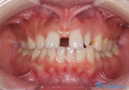 欠損歯と矮小歯 矯正治療と前歯のセラミック治療の症例 治療前