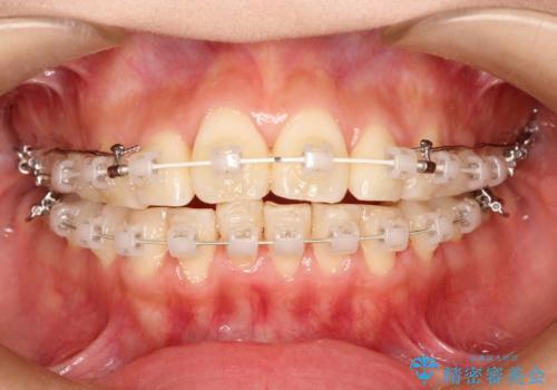 前歯で咬めない・出っ歯 抜歯矯正で整った上下の前歯への治療中