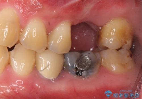 上の奥歯のインプラント、全体的な虫歯治療の症例 治療前