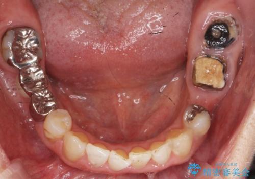 どうしても抜歯したくない 歯根分割術・骨外科手術で歯を残す 50代女性の治療前