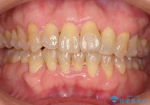 前歯のがたつき インビザラインで抜歯矯正の治療中