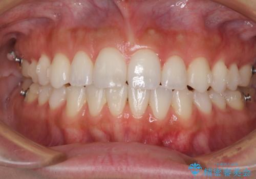 前歯のオープンバイトを治したい インビザラインでの矯正治療の治療中