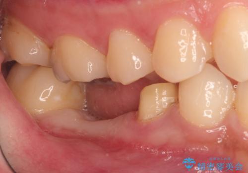 保存不可能な歯を抜歯してインプラント治療の治療中