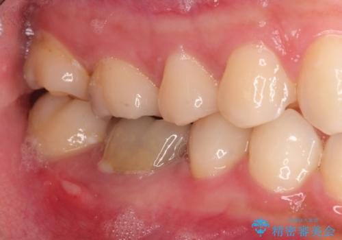 保存不可能な歯を抜歯してインプラント治療の症例 治療前