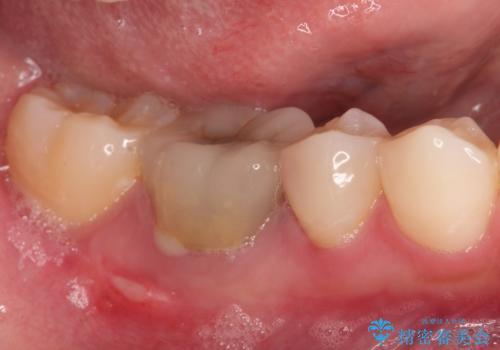 保存不可能な歯を抜歯してインプラント治療の治療前