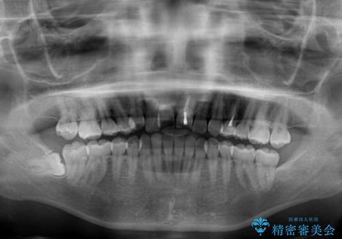 前歯のクロスバイトと変色した歯 ワイヤー矯正とセラミック治療の治療前