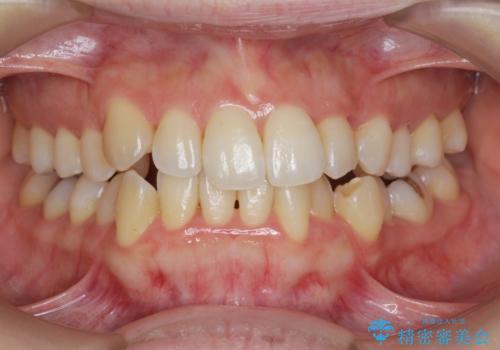[[ 八重歯 ]] マウスピース部分矯正による改善の治療後