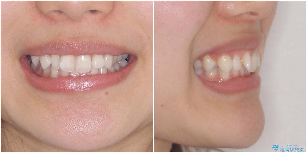 深い咬み合わせと奥歯のむし歯 総合歯科治療の治療前(顔貌)