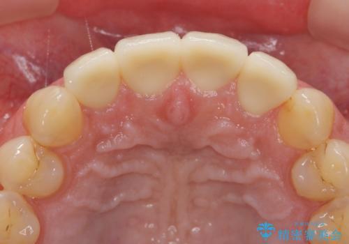 [[セラミック治療]]  溶けて形の悪くなった歯を改善したいの治療後