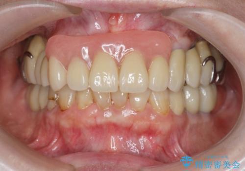 [[ 上顎多数歯欠損 ]]   インプラント・義歯を用いた補綴の治療後