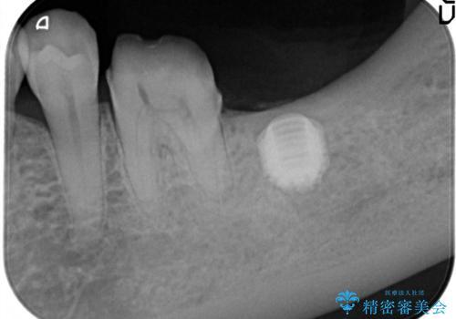 失った歯のインプラントでの咬合回復の治療中