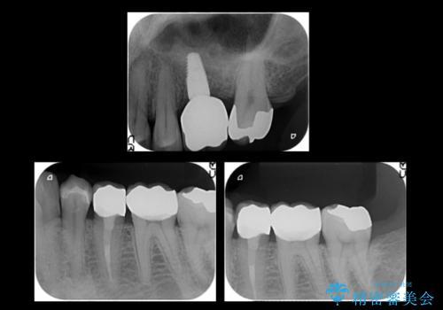 上の奥歯のインプラント、全体的な虫歯治療の治療後