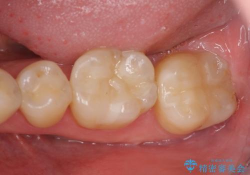 見える銀歯を白くの治療後