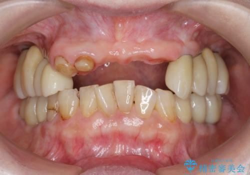 [[ 上顎多数歯欠損 ]]   インプラント・義歯を用いた補綴の治療中