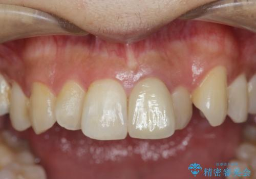 歯の変色 前歯の審美改善の症例 治療後