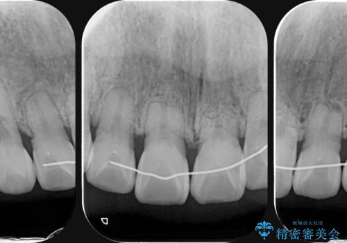 [[ 前歯に見られた吸収像  ]]セラミックブリッジ製作の治療前