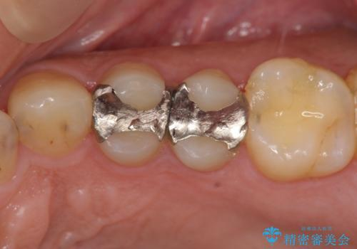 近所で入れた銀歯に食べ物が挟まるの治療前