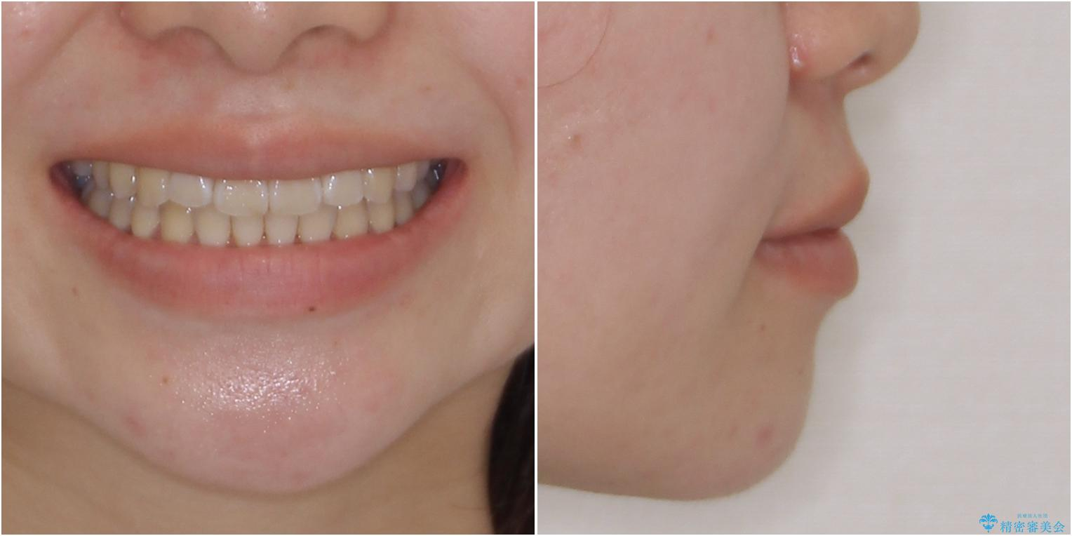 海外留学をしながら歯並びを整えたい インビザラインによる矯正治療の治療後(顔貌)