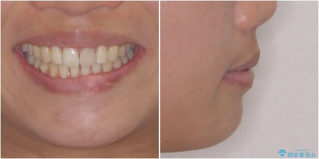 気になる前歯を治したい インビザライン矯正とオールセラミッククラウンの治療後(顔貌)