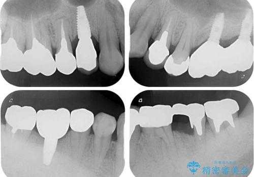 折れてしまった奥歯 インプラントによる補綴治療の治療後