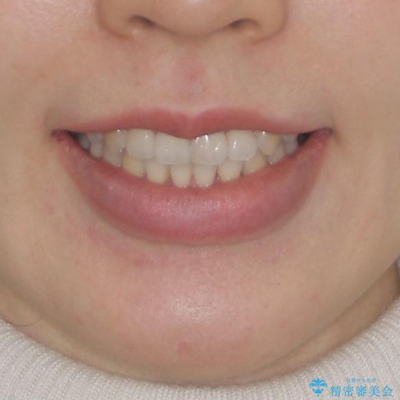 前歯のデコボコを治したい ワイヤー矯正の治療後(顔貌)