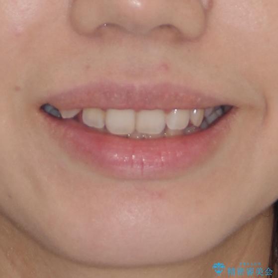 気になる八重歯を治したい インビザラインと補助装置を用いた抜歯治療の治療前(顔貌)