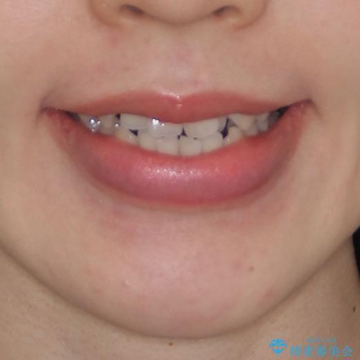 前歯のデコボコを治したい ワイヤー矯正の治療前(顔貌)
