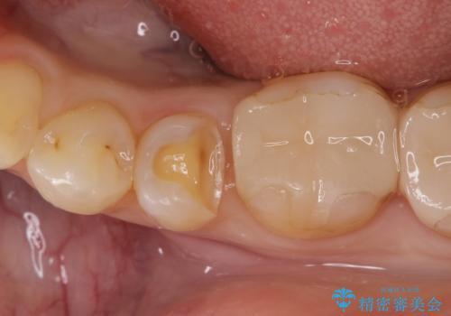 虫歯の治療(セラミックインレー)の治療中