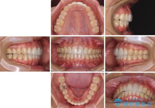気になる前歯を治したい インビザライン矯正とオールセラミッククラウンの治療後