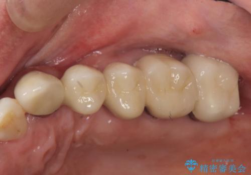歯周病 側方力に対抗するブリッジ補綴の治療後