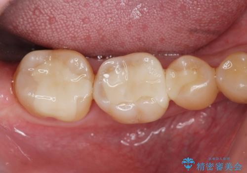 歯の神経を残す、丁寧な虫歯の除去の治療後
