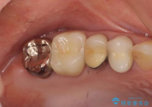 奥歯クラウン(オールセラミック)の症例 治療前
