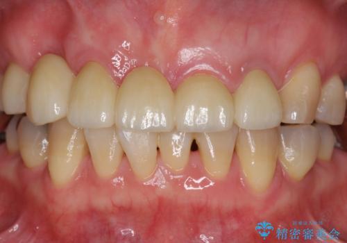 過度な咬合力 歯ぎしりで抜けた歯の欠損補綴の治療後