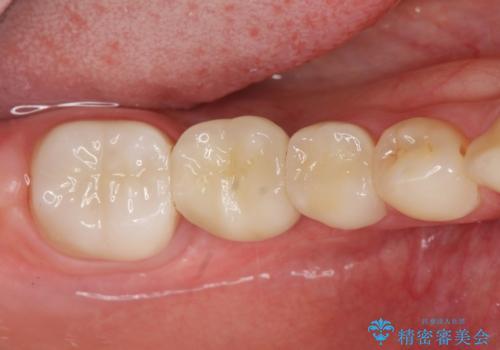 臼歯インプラント補綴の治療後